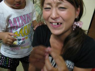 差し歯2).JPG