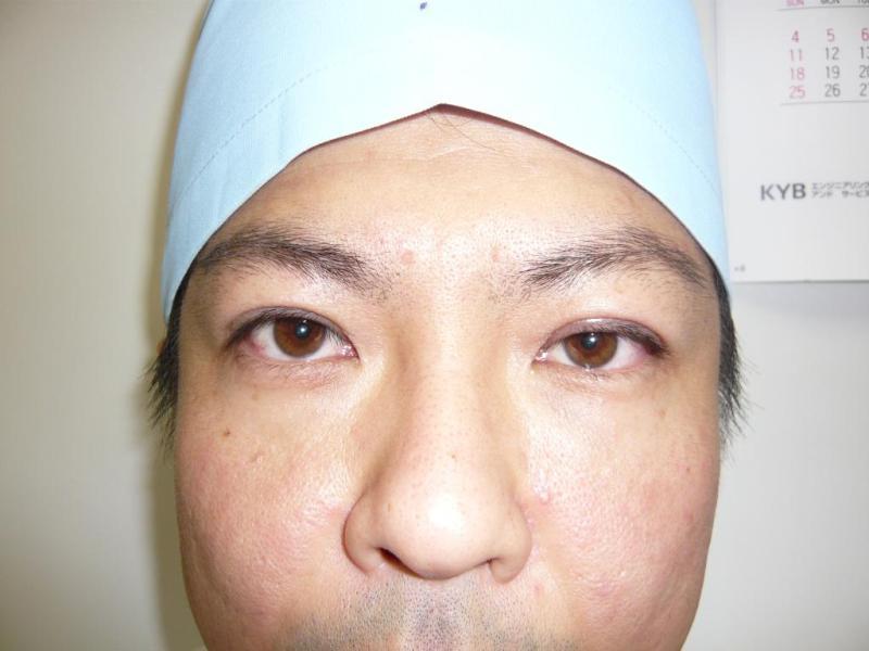 Sincerely Yours 銀座の美容外科・美容皮膚科  コスメディカルクリニック シンシア    -眼瞼下垂
