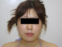 シンシア~Sincerely Yours 銀座の美容外科・美容皮膚科-ほほ アゴ 脂肪吸引 効果 腫れ 写真