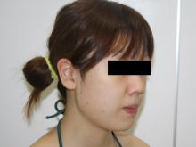 シンシア~Sincerely Yours 銀座の美容外科・美容皮膚科-ほほ アゴ 脂肪吸引 効果 写真