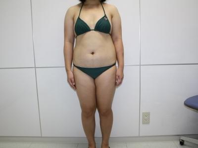 シンシア~Sincerely Yours 銀座の美容外科・美容皮膚科-全身脂肪吸引 劇的変化 写真 画像