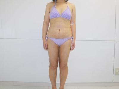 シンシア~Sincerely Yours 銀座の美容外科・美容皮膚科-全身脂肪吸引 劇的変化 写真