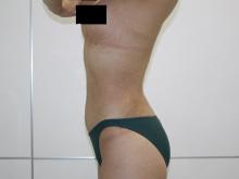 シンシア~Sincerely Yours 銀座の美容外科・美容皮膚科-腹部 腰 脂肪吸引 画像 写真 くびれ