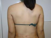 シンシア~Sincerely Yours 銀座の美容外科・美容皮膚科-二の腕 脂肪吸引 名医