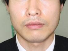 シンシア~Sincerely Yours 銀座の美容外科・美容皮膚科-たらこ唇 手術 口唇縮小 口コミ 名医