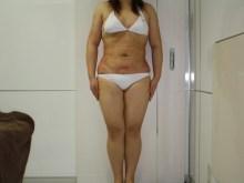 シンシア~Sincerely Yours 銀座の美容外科・美容皮膚科-大量脂肪吸引 名医 口コミ 画像