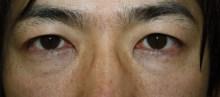 シンシア~Sincerely Yours 銀座の美容外科・美容皮膚科-クマ 目の下 脂肪除去 注入 名医 口コミ 安い