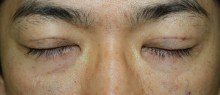 シンシア~Sincerely Yours 銀座の美容外科・美容皮膚科-男 クマ 目の下 脂肪除去 注入 口コミ 安い