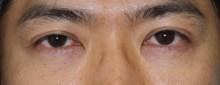 シンシア~Sincerely Yours 銀座の美容外科・美容皮膚科-男 クマ 目の下 脂肪除去 注入 名医 安い