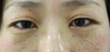 シンシア~Sincerely Yours 銀座の美容外科・美容皮膚科-目の下のクマ 経結膜脱脂 脂肪注入 口コミ 安い
