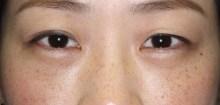 シンシア~Sincerely Yours 銀座の美容外科・美容皮膚科-目の下のクマ 経結膜脱脂 脂肪注入 腫れない