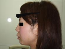 シンシア~Sincerely Yours 銀座の美容外科・美容皮膚科-プチ整形 安い 激安 術後