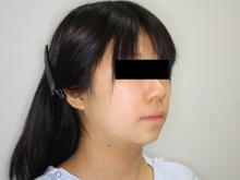 シンシア~Sincerely Yours 銀座の美容外科・美容皮膚科-ほほ アゴ 脂肪吸引 ダウンタイム