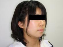 シンシア~Sincerely Yours 銀座の美容外科・美容皮膚科-ほほ アゴ 脂肪吸引 口コミ 名医