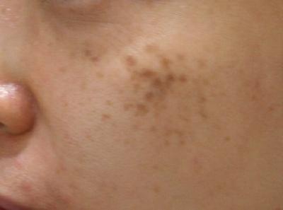 シンシア~Sincerely Yours 銀座の美容外科・美容皮膚科-後天性真皮メラノサイトーシス 治療 効果 評判