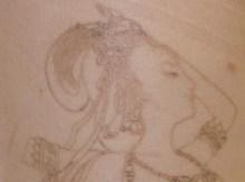 シンシア~Sincerely Yours 銀座の美容外科・美容皮膚科-Tattoo 入れ墨 刺青 レーザー 評判
