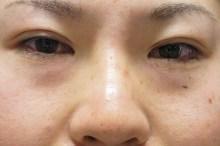 シンシア~Sincerely Yours 銀座の美容外科・美容皮膚科-レディエッセ 激安 安い 格安