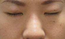 シンシア~Sincerely Yours 銀座の美容外科・美容皮膚科-レディエッセ 鼻 安い 格安