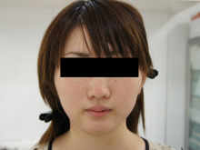 シンシア~Sincerely Yours 銀座の美容外科・美容皮膚科-顔やせ 脂肪吸引 頬 アゴ 口コミ