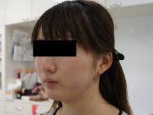 シンシア~Sincerely Yours 銀座の美容外科・美容皮膚科-顔やせ 脂肪吸引 頬 アゴ 写真