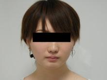 シンシア~Sincerely Yours 銀座の美容外科・美容皮膚科-顔やせ 脂肪吸引 頬 アゴ 名医 口コミ