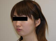 シンシア~Sincerely Yours 銀座の美容外科・美容皮膚科-顔やせ 脂肪吸引 頬 アゴ 安い
