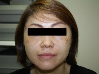 シンシア~Sincerely Yours 銀座の美容外科・美容皮膚科-後天性真皮メラノサイトーシス 治療 効果