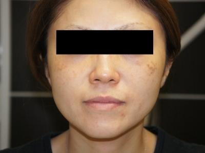 シンシア~Sincerely Yours 銀座の美容外科・美容皮膚科-後天性真皮メラノサイトーシス 治療 レーザー