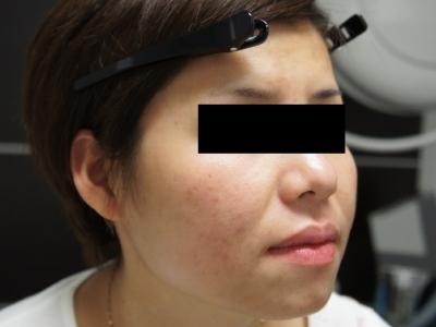シンシア~Sincerely Yours 銀座の美容外科・美容皮膚科-ロアキュタン アキュテイン 安い 激安
