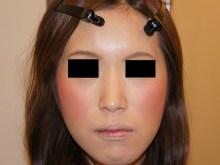 シンシア~Sincerely Yours 銀座の美容外科・美容皮膚科-鼻 レディエッセ 腫れ 安い 評判