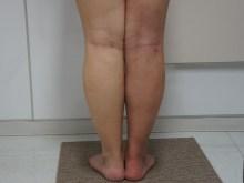 シンシア~Sincerely Yours 銀座の美容外科・美容皮膚科-ふくらはぎ 足首 脂肪吸引