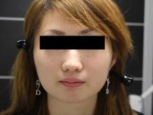 シンシア~Sincerely Yours 銀座の美容外科・美容皮膚科-顔やせ 頬 脂肪吸引