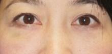 シンシア~Sincerely Yours 銀座の美容外科・美容皮膚科-目の下 タルミ たるみ 口コミ