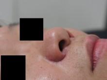シンシア~Sincerely Yours 銀座の美容外科・美容皮膚科-鼻翼縮小 小鼻縮小 獅子鼻 効果