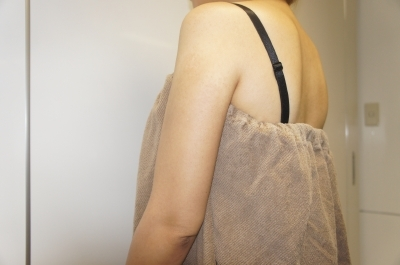 シンシア~Sincerely Yours 銀座の美容外科・美容皮膚科-二の腕 ぶつぶつ ざらざら ブツブツ ザラザラ
