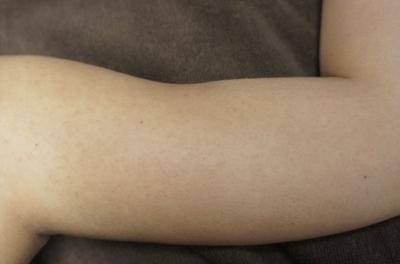 シンシア~Sincerely Yours 銀座の美容外科・美容皮膚科-二の腕ぶつぶつ 治療 効果 口コミ