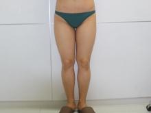 シンシア~Sincerely Yours 銀座の美容外科・美容皮膚科-べいざー VASER 脂肪吸引 口コミ 名医