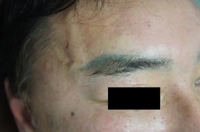 シンシア~Sincerely Yours 銀座の美容外科・美容皮膚科-アートメイク 除去 レーザー 効果 東京
