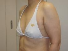 シンシア~Sincerely Yours 銀座の美容外科・美容皮膚科-にのうで 腕 脂肪吸引 たるみ ベイザー 東京 評判