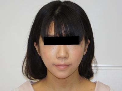 シンシア~Sincerely Yours 銀座の美容外科・美容皮膚科-頬 アゴ ベイザー レディエッセ 東京