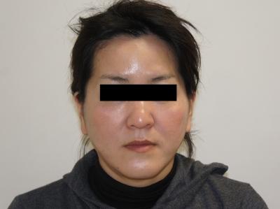 シンシア~Sincerely Yours 銀座の美容外科・美容皮膚科-フェイスリフト 後戻り 東京 名医 評判