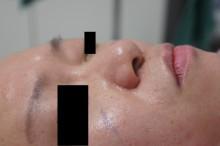 シンシア~Sincerely Yours 銀座の美容外科・美容皮膚科-小鼻縮小 鼻翼縮小 後戻り 傷 評判