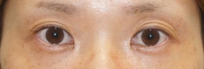 シンシア~Sincerely Yours 銀座の美容外科・美容皮膚科-目頭切開 平行型 東京 評判 傷跡