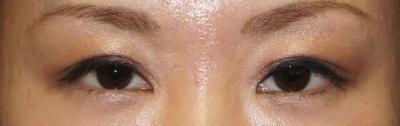 シンシア~Sincerely Yours 銀座の美容外科・美容皮膚科-目頭切開 平行型二重 傷跡 傷 東京 口コミ