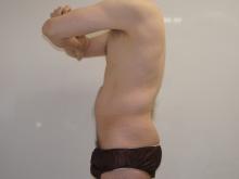 シンシア~Sincerely Yours 銀座の美容外科・美容皮膚科-男 腹部 脂肪吸引 ベイザー VASER 腹筋