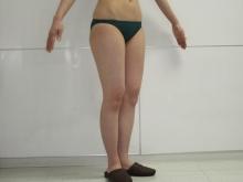 シンシア~Sincerely Yours 銀座の美容外科・美容皮膚科-VASER ベイザー 東京 評判 格安