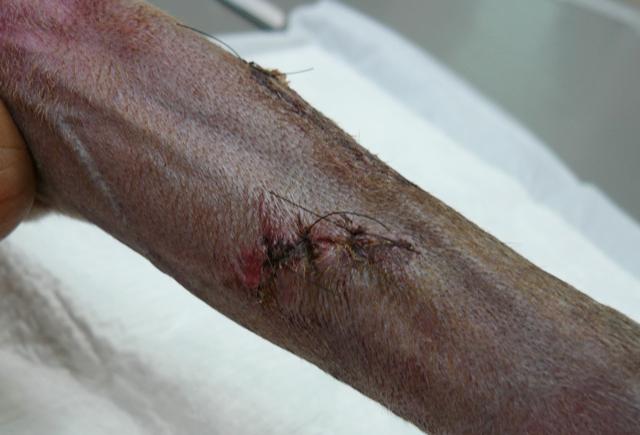 内側・4針縫った傷