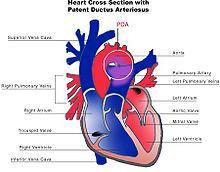 220px-Patent_ductus_arteriosus.jpg