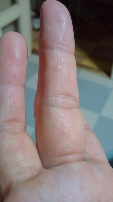 痒い 腹 指 の