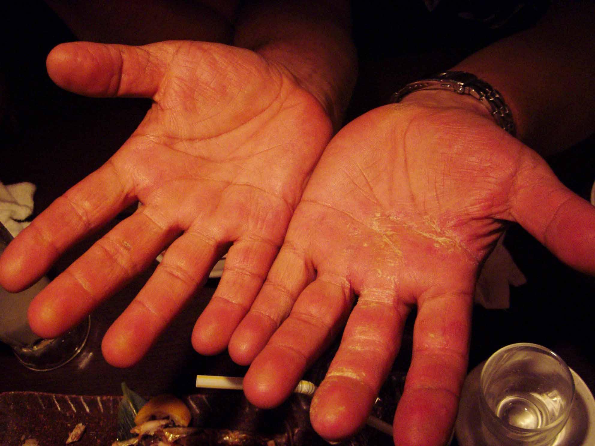 Lennyの手